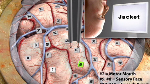 Awake Brain Mapping for Resection of Insular Tumors