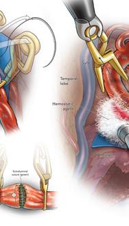 End-to-End Anastomosis