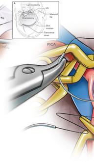 Side-to-Side Anastomosis, Deep Intraluminal Suture Run