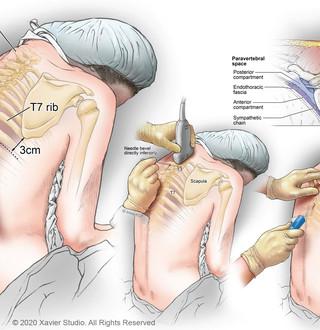 Intercostal and Paravertebral Nerve Blocks