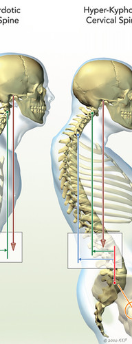 Cervical Spine Alignment Parameters