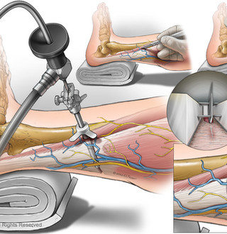 Integra® Endoscopic Gastrocnemius Release (EGR) System