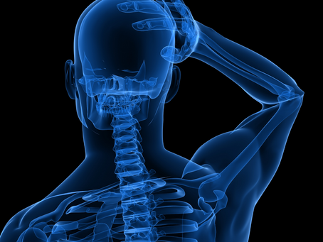 What is Cervicogenic Headache and How is it Treated by Chiropractic