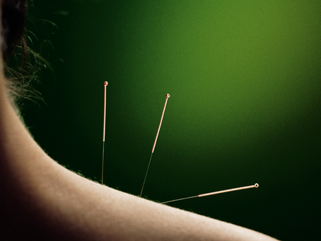 Why You Should Consider Treating Car Crash Injuries with Acupuncture