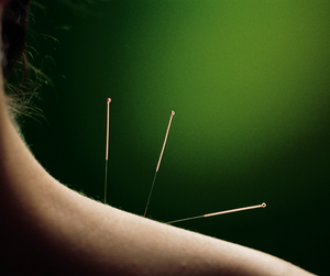 woman's shoulder with 3 acupuncture needles