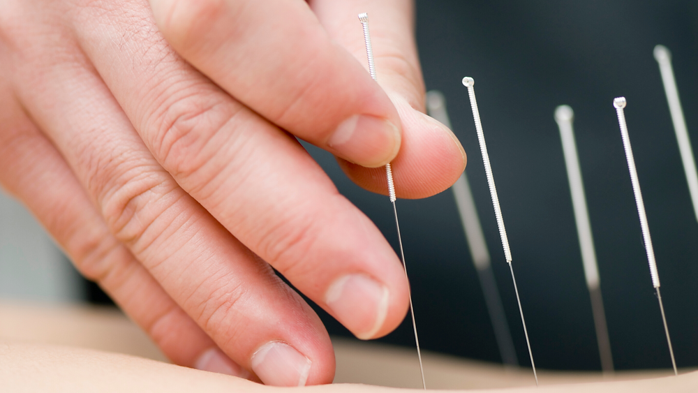 placing acupuncture needles in patients back for sciatica