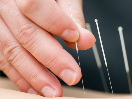 WILL ACUPUNCTURE HELP SCIATICA AND SCIATIC NERVE PAIN?