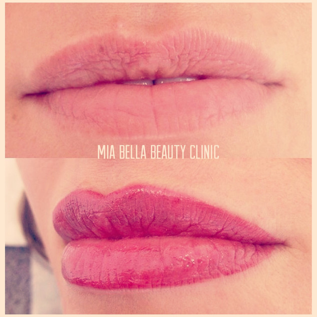 Full lips - Before & After