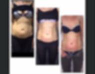 40-abdomen.jpg
