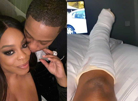 Niecy Nash Breaks Foot in Three Places a Month After Her Surprise Wedding Announcement