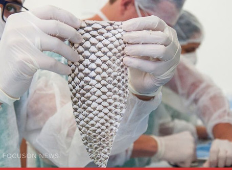 Transwoman Gets A New Vagina Made Out of Fish Skin