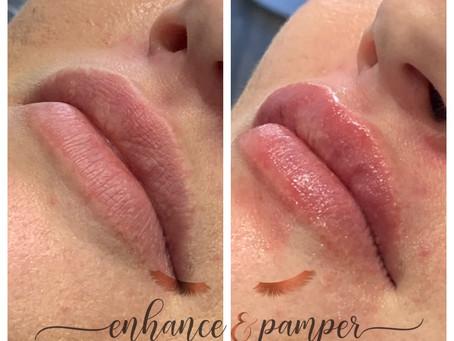 No Needle Lip Filler and dermal fillers