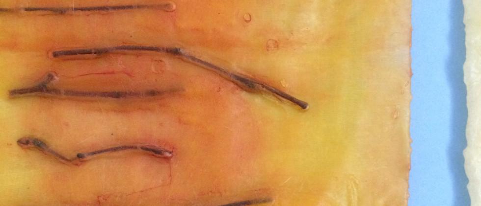 Healing Signs, detail 2