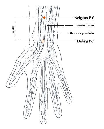 Acupuncture point PC 6  from Deadman's Manual of Acupuncture