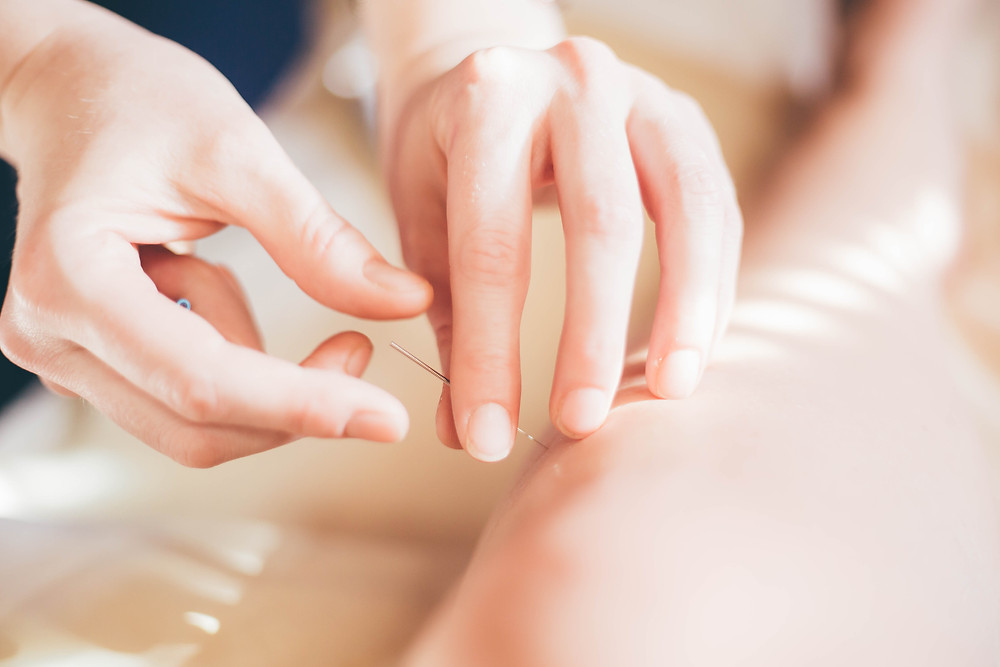Acupuncture for travel preparation