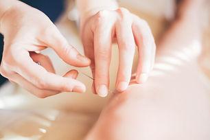denver acupuncture, acupuncture pain, lakewood acupuncture