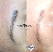 Bad Microblading was removed with laser.