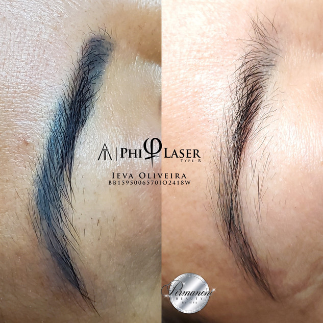 Bad Microbladed Brow was restored by removal with laser.