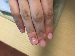 手の爪に出る白い点はラッキーサイン☆