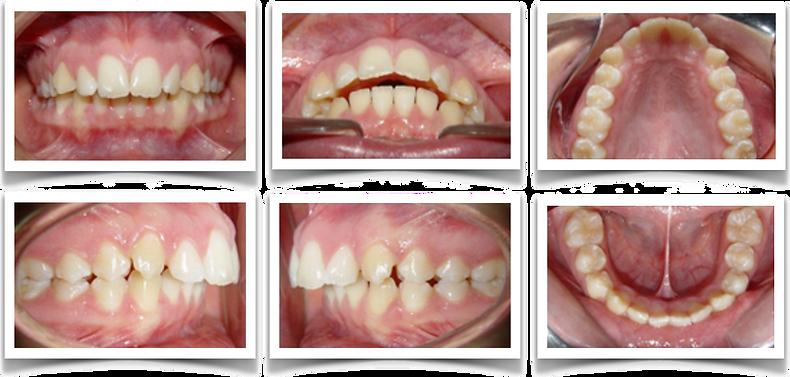 Fotos Dentales Web 1.png
