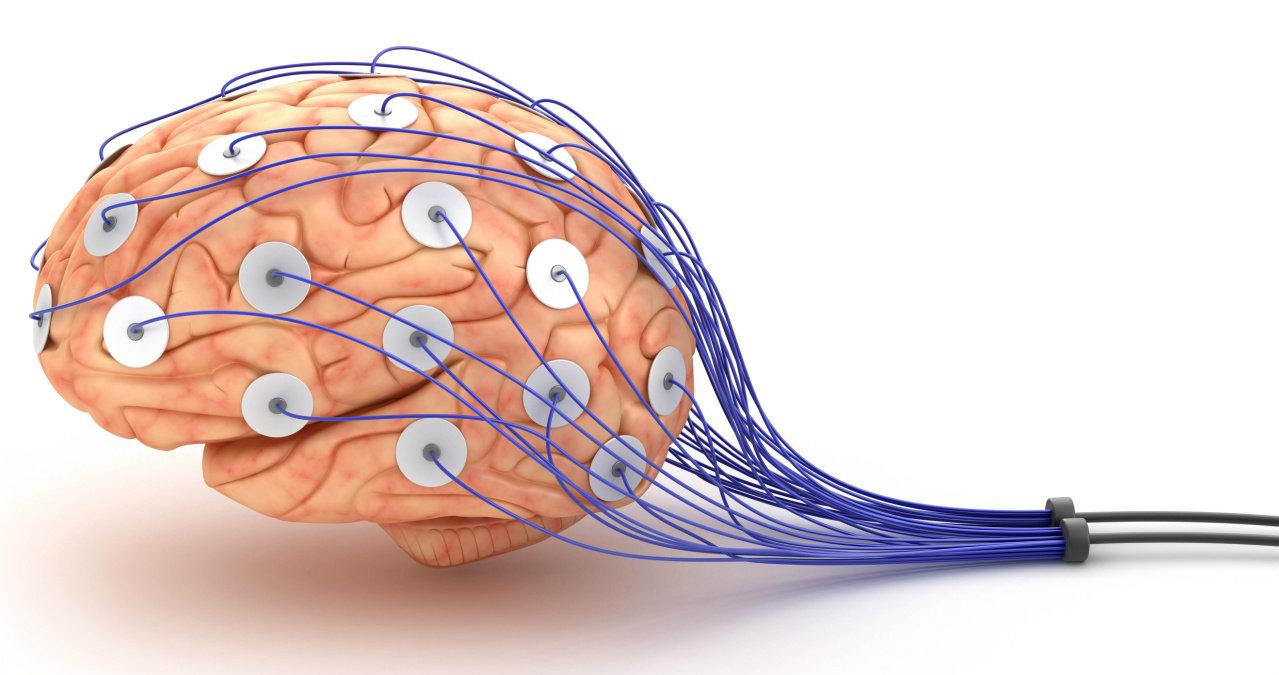 Electroencefalográma