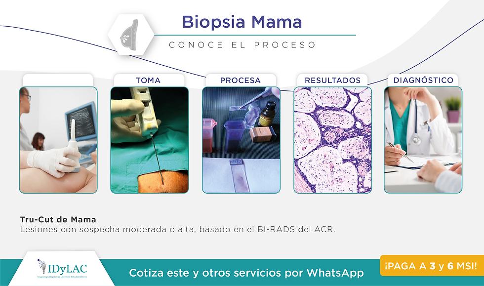 Biopsia Mama.png