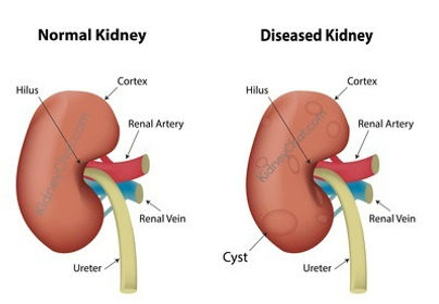 kidney-cysts.jpg