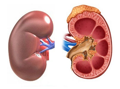 External and Internal Kidney Anatomy