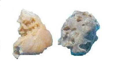 KidneyStones.jpg