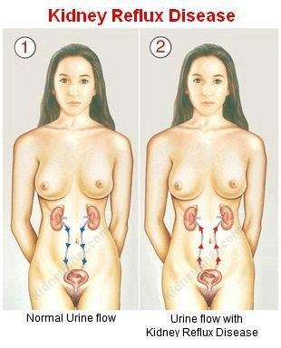 Kidney-Reflux.jpg