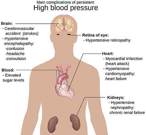 High-Blood-Pressure-Dangers.jpg