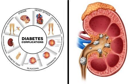 Diabetes and Kidney Stones