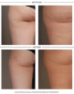renu28-cellulite.jpg
