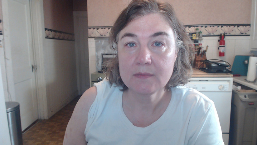 Fluoride Acne Before and After Photo Mar