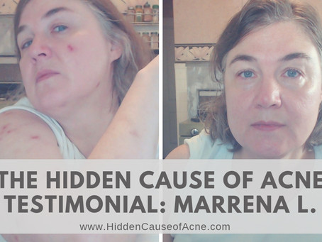 My Fluoride Acne Story: Marenna L. (Testimonial for The Hidden Cause of Acne by Melissa Gallico)