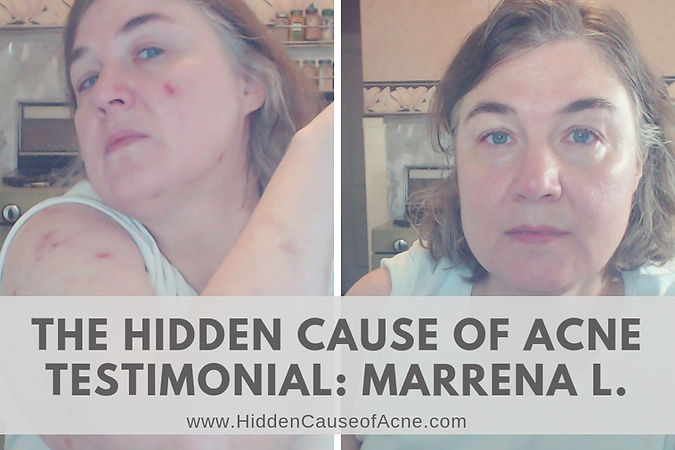 Hidden Cause of Acne fluoride testimonia