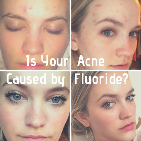 testimonials for fluoride as the hidden