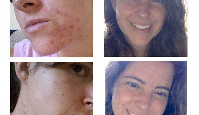 Does Fluoride Cause Adult Acne? Before and After Photos