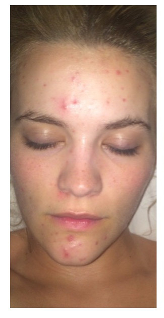 Lauren testimonial fluoride acne before and after pics