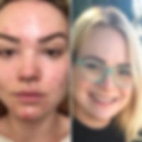 Hidden Cause of Acne Before and After Je