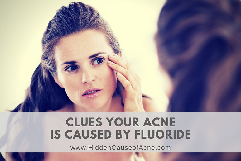 Clues Your Acne is Caused by Fluoride Dr