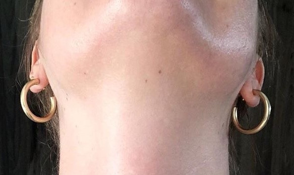 Fluoride adult acne before and after photos