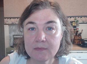 Fluoride Acne Testimonial | How I Maintain Clear Skin by Avoiding Fluoride