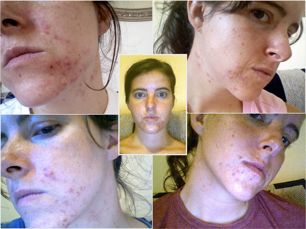 Healing Acne Caused by Fluoride