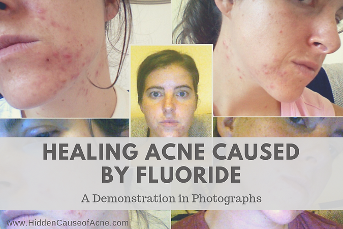 Healing Acne Caused by Fluoride.png