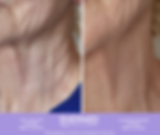 neck2.png