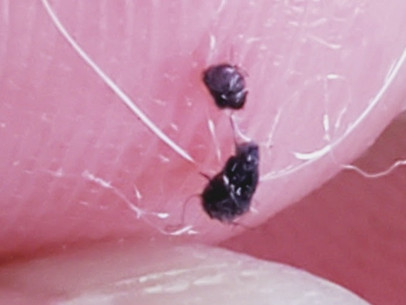 2021 Morgellons: My Path to Recovery & Treatment Options