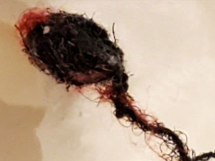 Unintended Consequences Of Diagnosing Morgellon's as Delusional Parasitosis