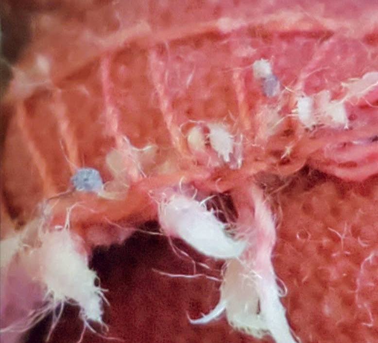 Morgellons parasites hide in our clothing and larva live in fuzz of sweater.
