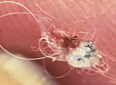 Evidence CDC is Wrong about Delusional Parasitosis! Morgellon's Fibers Are Skin Parasites